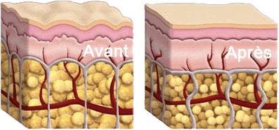 avantaprescellulite